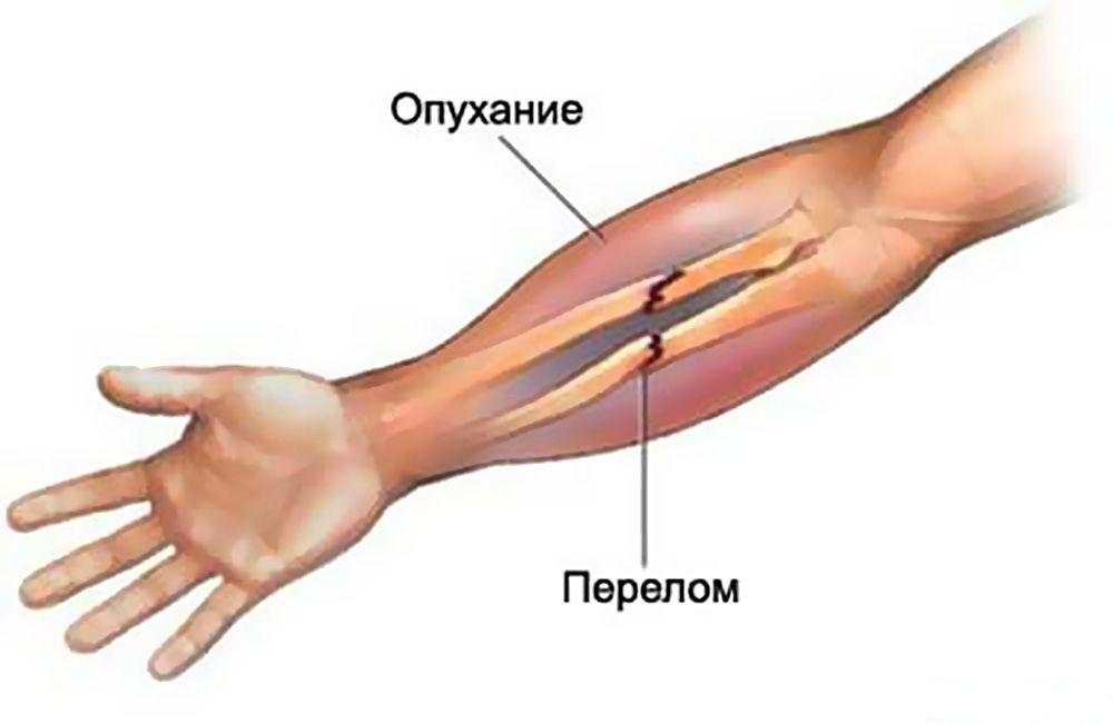 Как снять отек руки после перелома