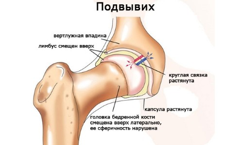Схема подвывиха тазобедренного сустава