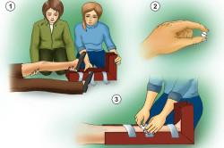 Фиксирование при переломе ноги