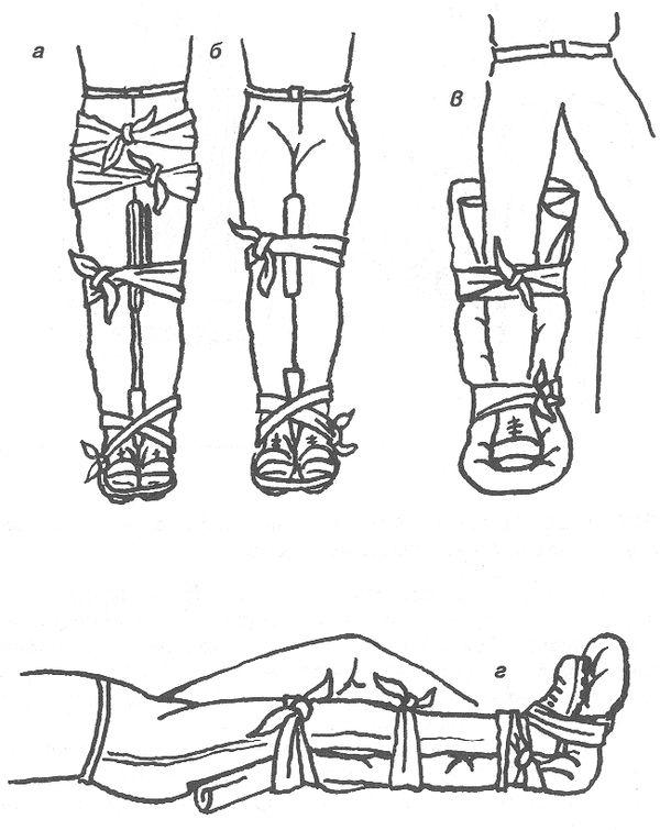 Как правильно сделать перевязку при переломе ноги