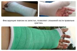 Фиксирующие повязки при переломе запястья