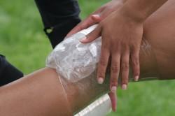 Приложение льда при ушибе голени