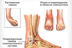 Схема растяжения связок голеностопа