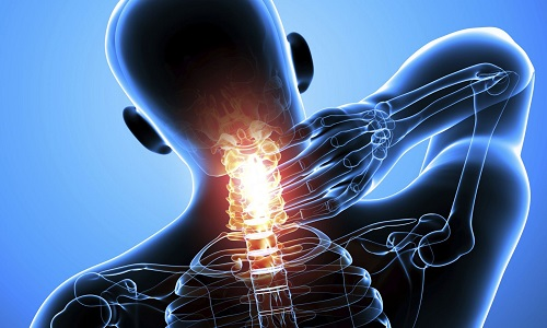 Проблема перелома шейного отдела позвоночника