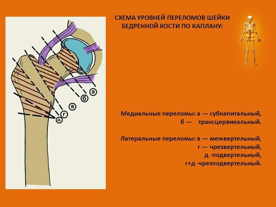 сколько срастается кость после перелома