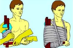 Наложение шины на плечо