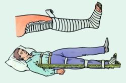 Шина Крамера при переломе ноги
