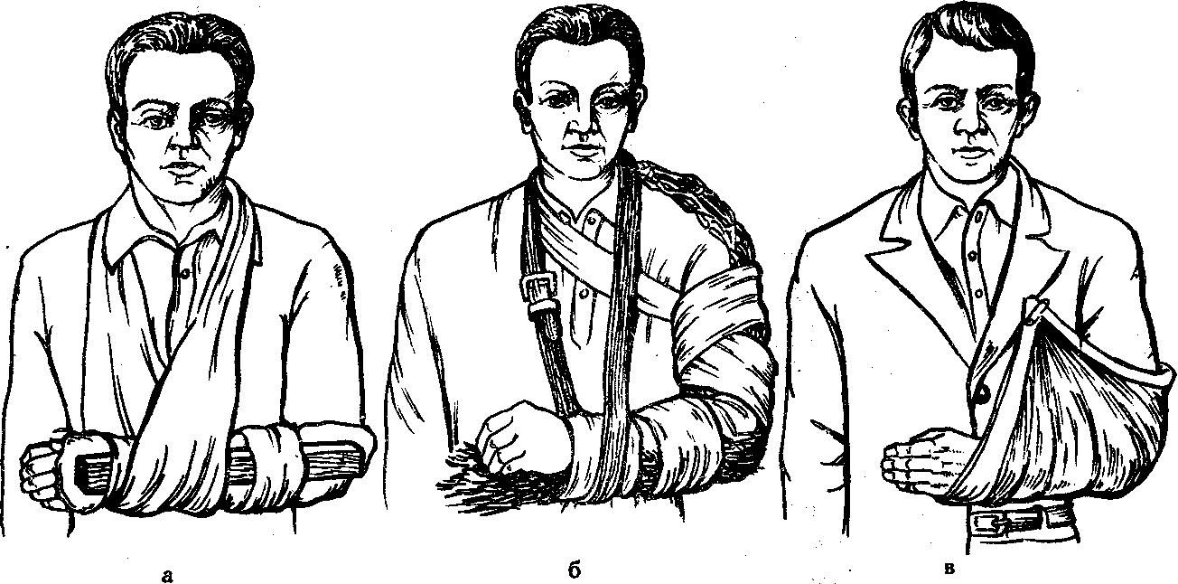 Перелом Смита