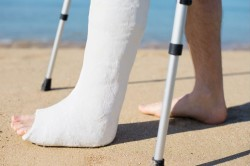 Возможность самостоятельного передвижения при консервативном лечении перелома