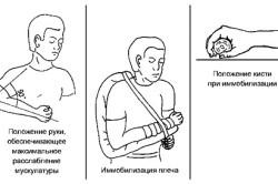 Транспортная иммобилизация при переломе костей предплечья