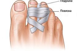 Схема наложения повязки на палец при ушибе