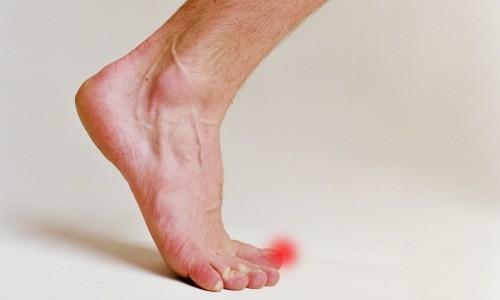 Проблема ушиба пальца на ноге