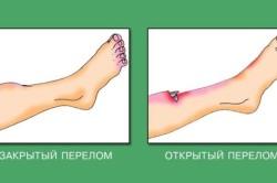 Виды переломов ноги