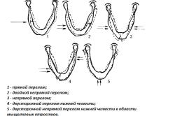 Виды переломов челюсти