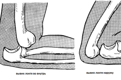 Виды вывиха локтевого сустава