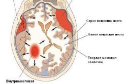 Виды гематом мозга