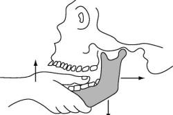 Вправление переднего вывиха височно-нижнечелюстного сустава по методу Гиппократа