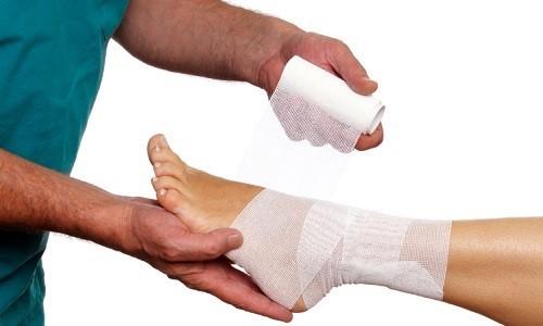 Проблема вывиха пальца на ноге
