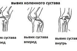 Виды вывиха коленного сустава