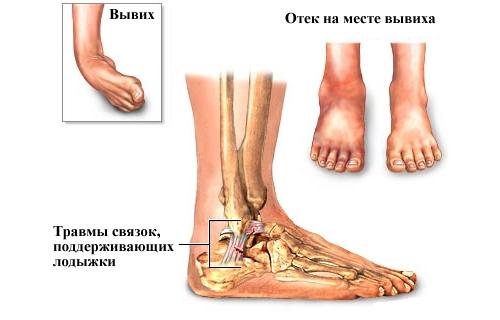 При вывихе колена сустав резко