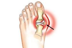 Схема вывиха пальца ноги