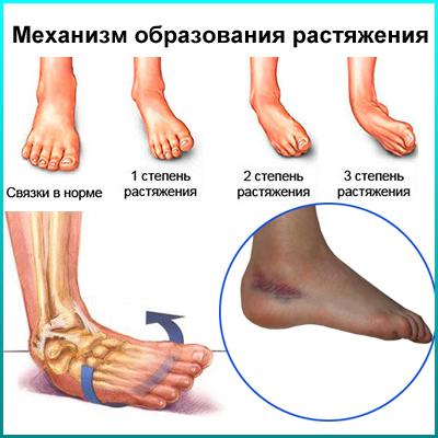 Узнаем почему могут болеть ступни ног по утрам