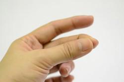 Ушиб пальцев руки