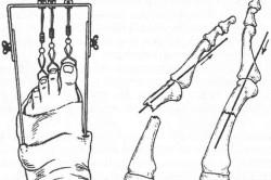 Вытяжение плюсневой кости стопы