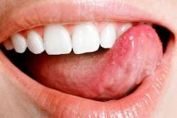 Ушиб языка - причина появления синяка