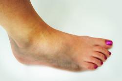 Гематома при переломе голеностопа
