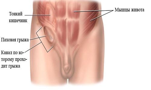 Растяжение паховых связок: симптомы и лечение