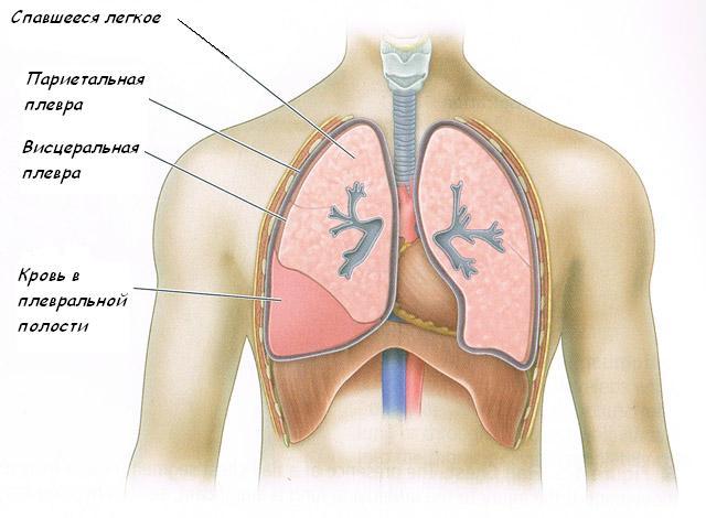 Перелом грудины: симптомы, лечение и последствия