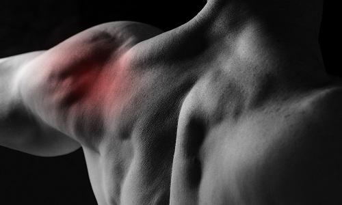 Проблема подвывиха плечевого сустава
