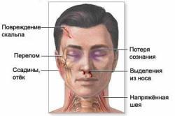 Самые основные симптомы при переломе черепа
