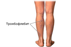Изображение - Водочный компресс при растяжении связок коленного сустава tromboflebit-250x166