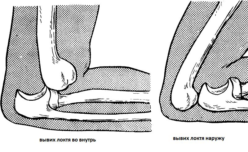 Изображение - Вывих плечевого сустава у ребенка 2 года vidi-viviha-lokta