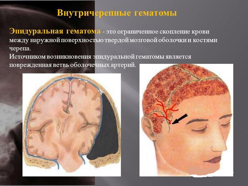 Консервативное лечение внутричерепных гематом